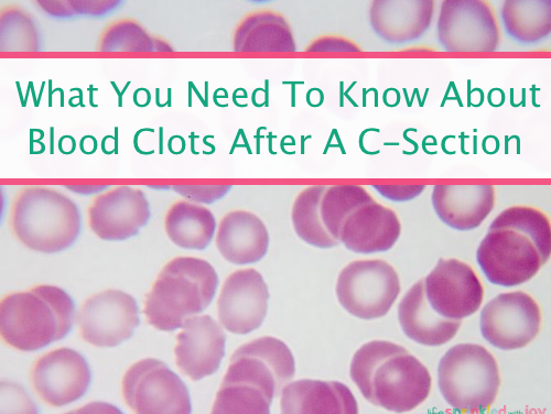 What You Need To Know About Blood Clots After A C-Section